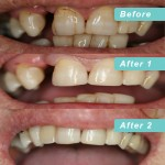 Composite build ups with denture