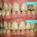 Composite build ups with internal whitening