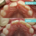 Early Cross bite correction