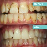 Full mouth makeover with fillings