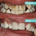 Neglected dentition make over